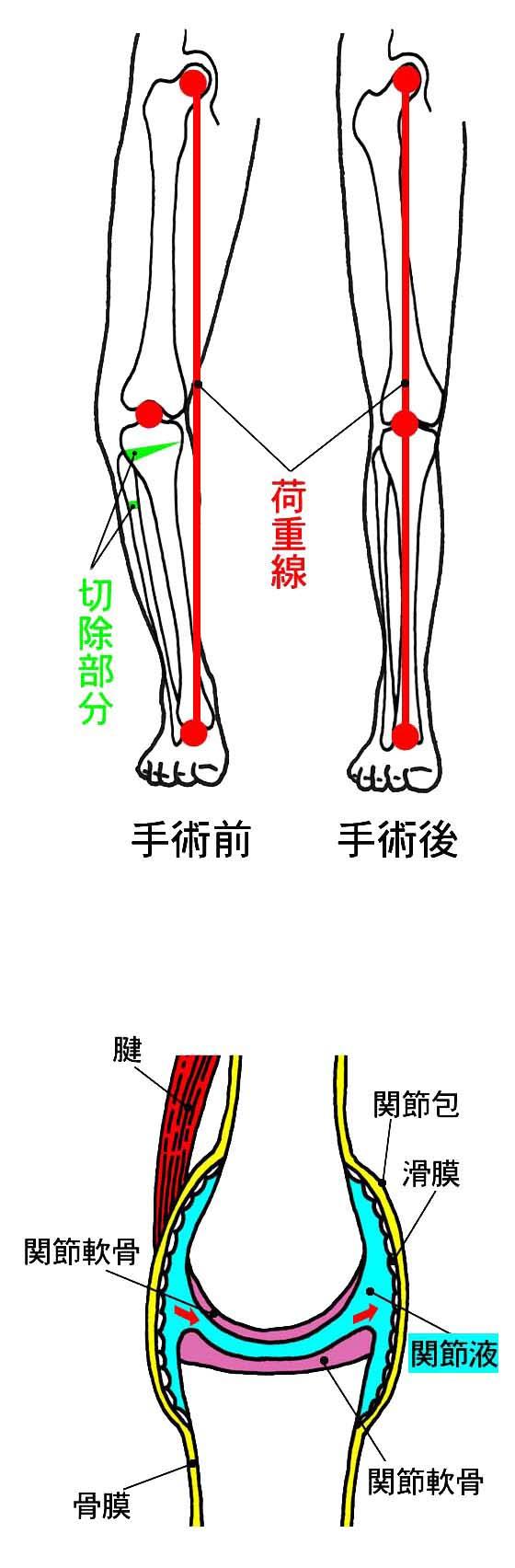 症 膝 し 性 関節 て こと 変形 は いけない