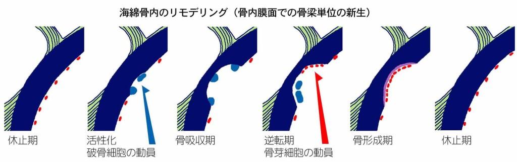 海綿骨内のリモデリング(骨内膜面での骨梁単位の新生)